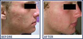Microdermabrasion | Noosaville Skin Technology | Anti-ageing